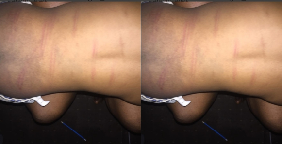 Nigerian Mother Seeks Advice On What To Do After A Teacher Did This To Her 2-year-old Daughter