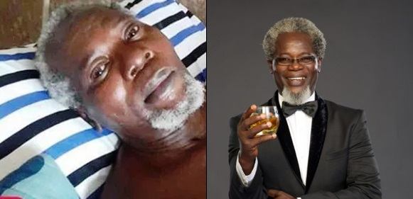 Two Years After, Nigerian Actor Victor Olaotan Still Needs Money To Travel Abroad Over Possibility Of His Two Legs Being Amputated