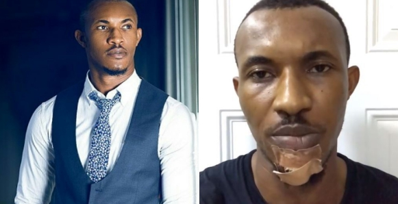 Actor, Gideon Okeke Narrates How Police And LASTMA Officials Beat And Dragged Him On The Ground Because He Asked For Help (Video)