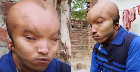 Indian Man With Alien Head Cries Out, Says He Can't Find Love