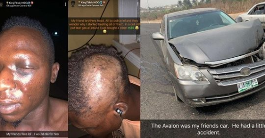 Nigerian Pornstar, Tblakhoc And His Friends Suffer Police Brutality After He Was Mistaken For A Yahoo Boy In Osun