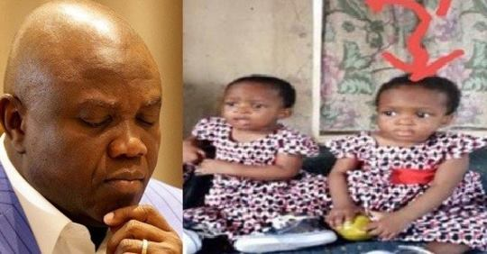 Lagos State Government Shuts Down Hospital Where Twin Girl Died Due To Wrong Blood Infusion.