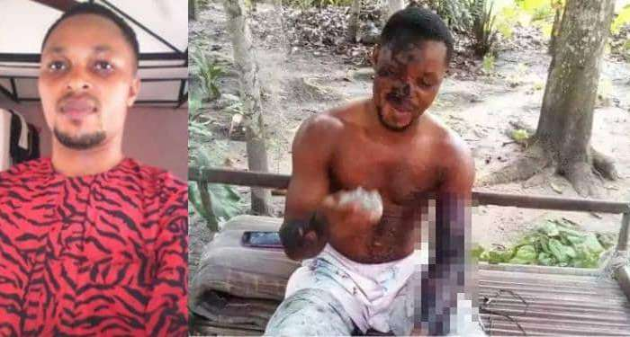 Jealous Woman Pours Hot Water On Boyfriend In Rivers State (Graphic Photos)