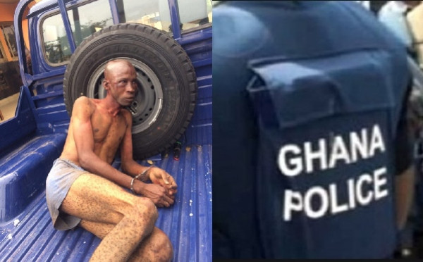 Nigerian Man Was Wrongly Accused Of Being A Kidnapper And Beaten – Ghana Police