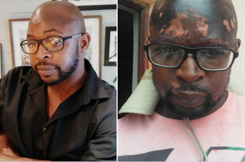 Man Suffers Severe Burns On His Face After The Mother Of His Children Poured Hot Water On Him (photos)
