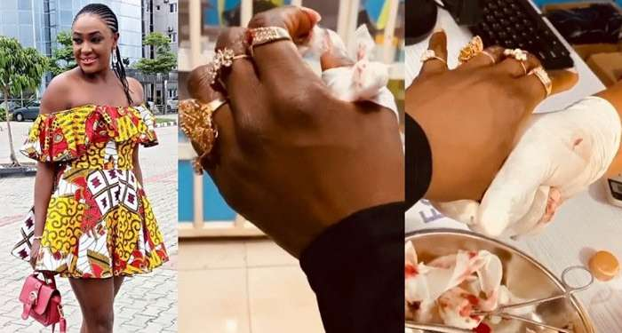 Stunt Goes Wrong As Actress, Lizzy Gold Almost Loses Her Fingers On A Movie Set (Video)