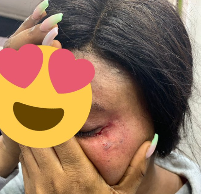 Woman's Face Allegedly Bitten By Lagos Island Trader Because She Ignored His Attempts To Get Her Attention (photo)