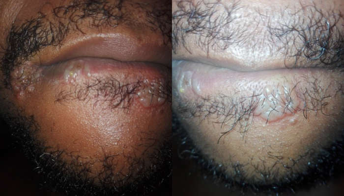 Nigerian Man Shares Photos Of The Disgusting Sores Growing Around His Mouth After Performing Mouth Action On A Woman