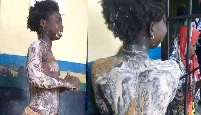 Girl In Pain After Her Aunt Poured Hot Water On Her In Kogi State