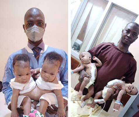 University Of Ilorin Teaching Hospital Successfully Separate Conjoined Female Twins