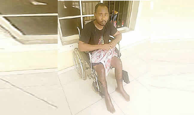Imo Accident Victim Stranded In The Hospital Over N400,000 Bill Appeals With Governor Uzodinma To Pay His 20 Months Salary Arrears