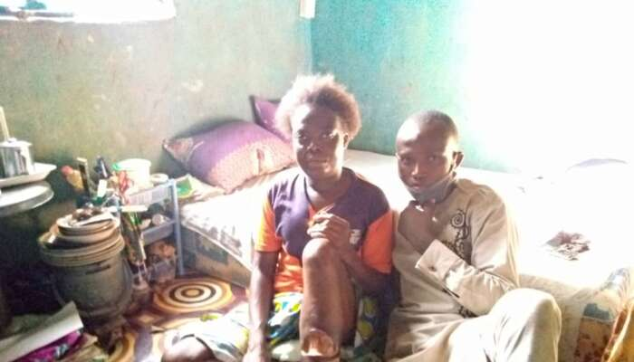 31-Year-Old  Food Vendor In Need Of 10million Naira For Leg Ulcer Surgery